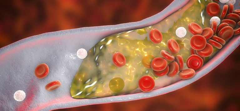 6 Things You Should Know About Carotid Artery Disease - Peripheral Vascular Associates