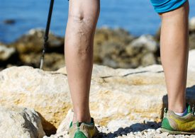 Varicose Veins / Venous Insufficiency - Peripheral Vascular Associates