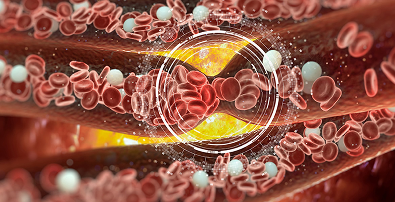 Catheter Directed Thrombolysis - Peripheral Vascular Associates