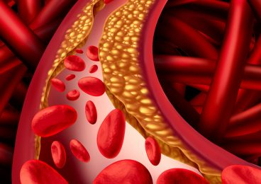 Peripheral Arterial Disease (P.A.D.) - Peripheral Vascular Associates