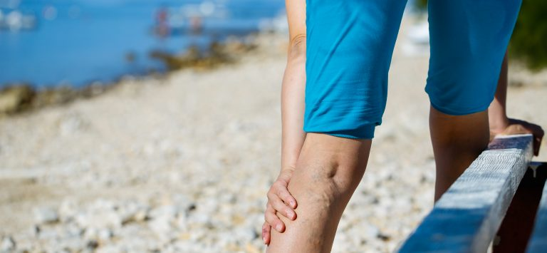 Dealing with Varicose Veins this Summer - Peripheral Vascular Associates
