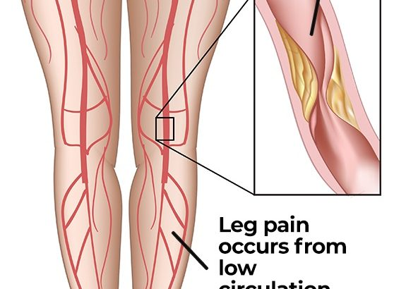 Peripheral Vascular Disease and  Poor Circulation in Legs: Are they related? - Peripheral Vascular Associates